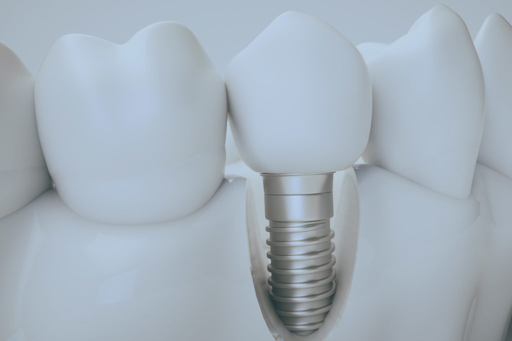 failing dental implant Select Dental