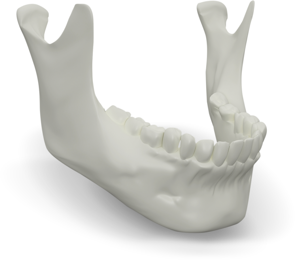 Jaw Bone Select Dental