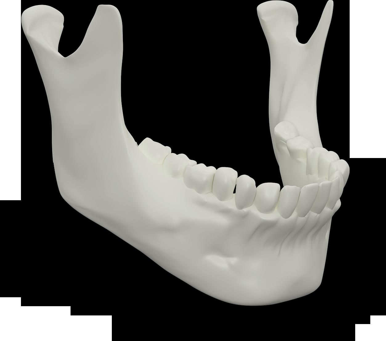 Jaw Bone Select Dental