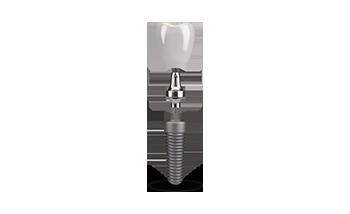 dental implant Select Dental