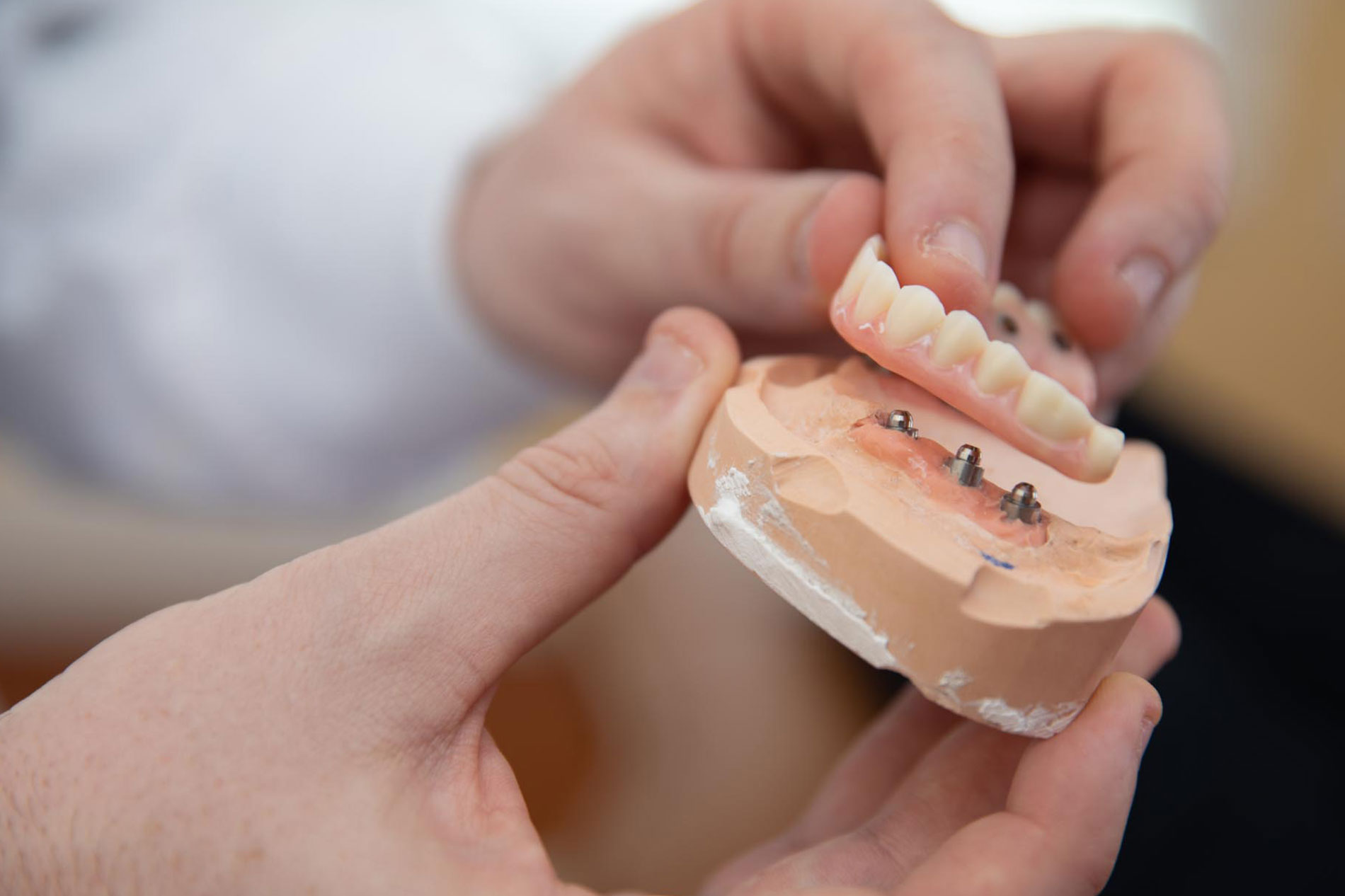 full arch dental implants Select Dental