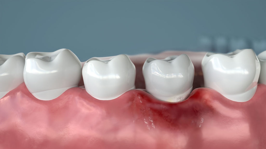 laser for gum disease