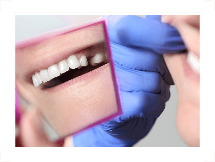 patient with extracted tooth Select Dental