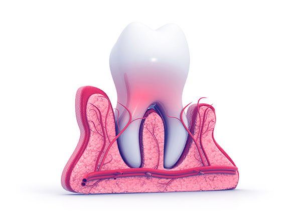 tooth pain Select Dental