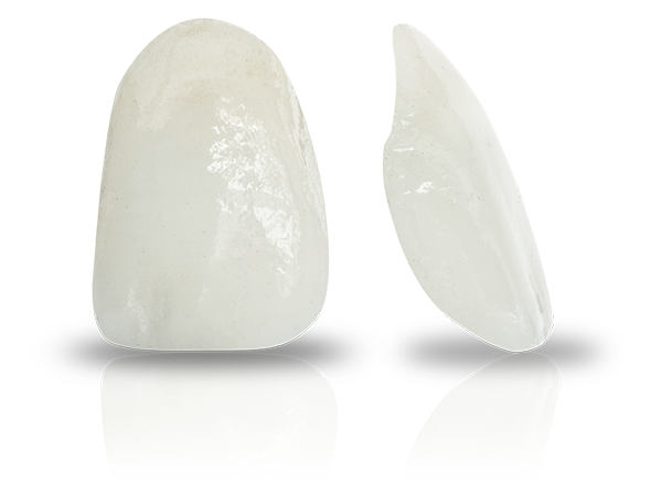 porcelain veneers Select Dental