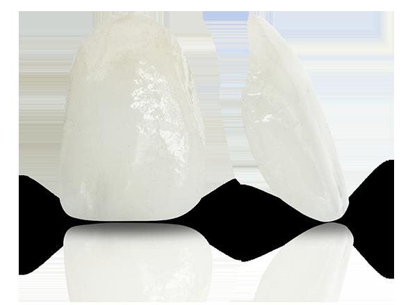 porcelain veneers Select Dental