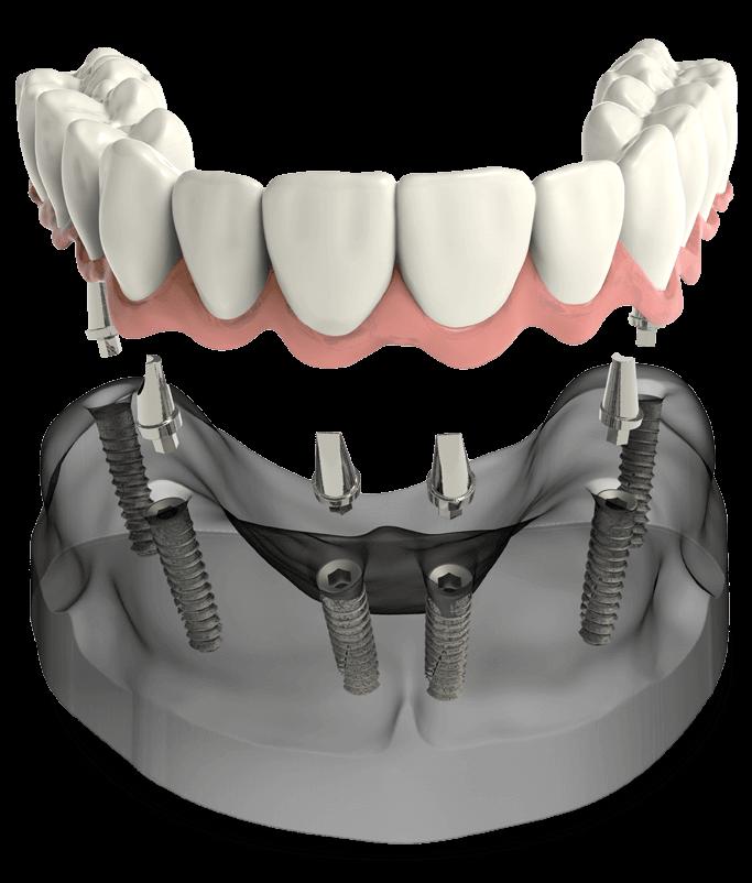 Full-arch dental implant model Select Dental