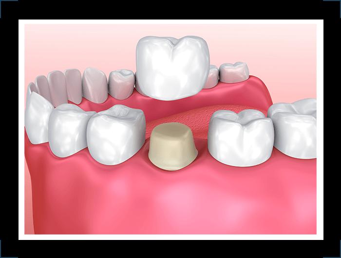 crown Select Dental